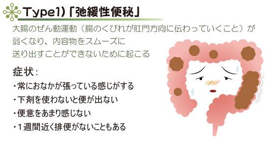 Type1)「弛緩性便秘」