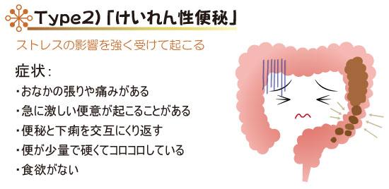Type2)「けいれん性便秘」