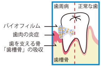 バイオフィルムが引き起こす歯周病