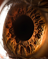 Suren Manvelyan氏の目の接写