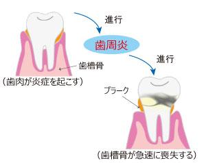 歯周病の進行図(歯肉炎→歯周炎→歯周病)