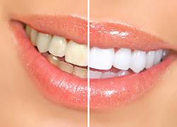 白い歯と着色汚れ