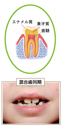 歯の構造と混合歯列期の歯の状態