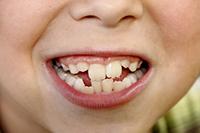 歯並びの悪い混合歯列期の子ども