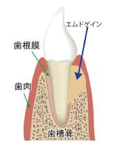 エムドゲイン治療法の図