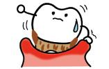 歯周病に罹ったゆるゆるの歯