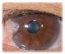 濁った水晶体の瞳