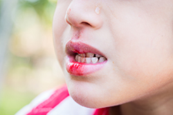 歯の応急処置